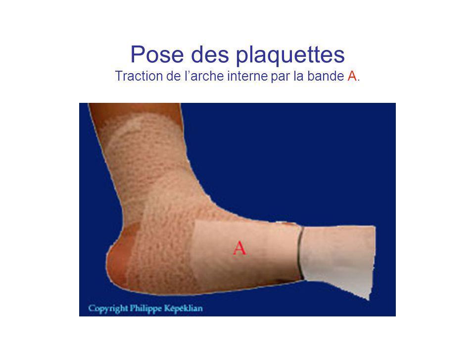 Pose des plaquettes Traction de larche interne par la bande A.