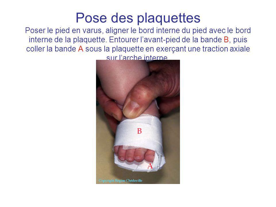 Pose des plaquettes Poser le pied en varus, aligner le bord interne du pied avec le bord interne de la plaquette. Entourer lavant-pied de la bande B,