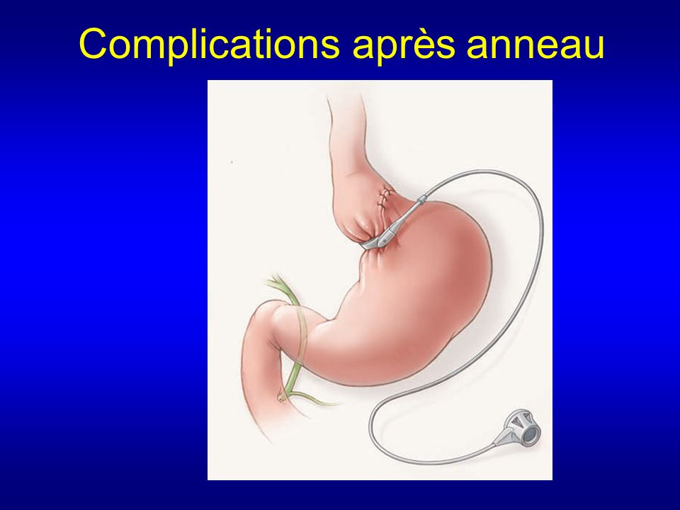Complications après anneau