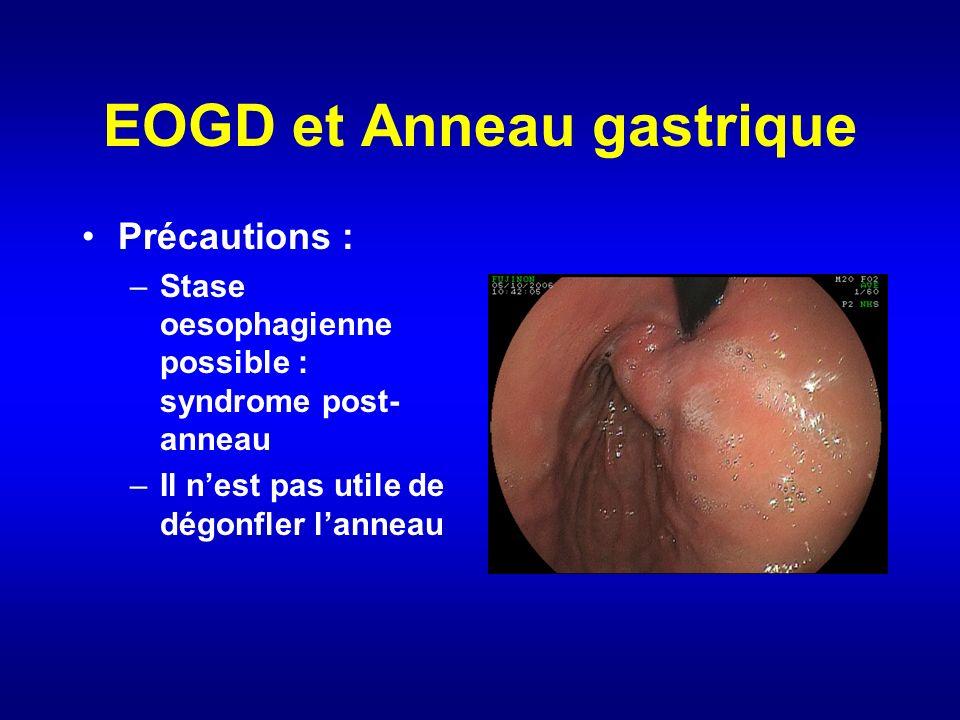 EOGD et Anneau gastrique Précautions : –Stase oesophagienne possible : syndrome post- anneau –Il nest pas utile de dégonfler lanneau