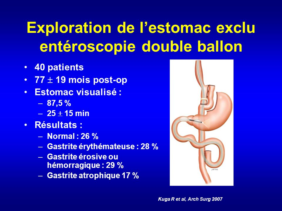 Exploration de lestomac exclu entéroscopie double ballon 40 patients 77 19 mois post-op Estomac visualisé : –87,5 % –25 15 min Résultats : –Normal : 2