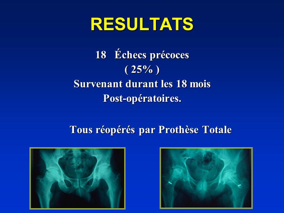 RESULTATS 18 Échecs précoces ( 25% ) Survenant durant les 18 mois Post-opératoires. Tous réopérés par Prothèse Totale Tous réopérés par Prothèse Total