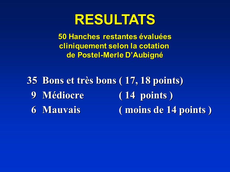 50 Hanches restantes évaluées cliniquement selon la cotation de Postel-Merle DAubigné 35Bons et très bons ( 17, 18 points) 9Médiocre ( 14 points ) 9Mé