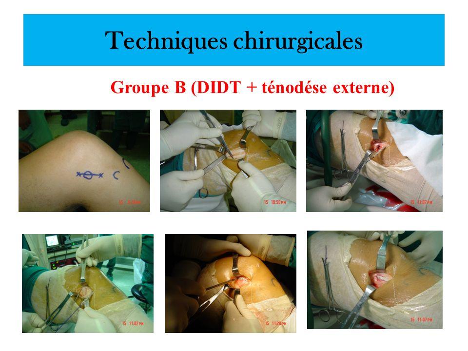 Techniques chirurgicales Groupe B (DIDT + ténodése externe)