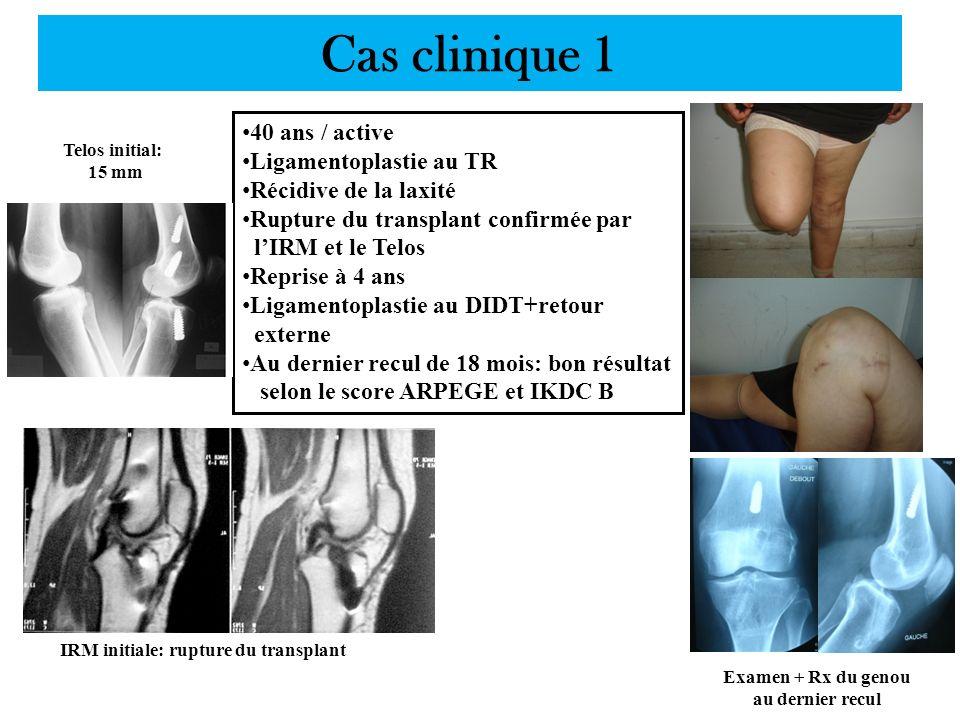 Cas clinique 1 IRM initiale: rupture du transplant Telos initial: 15 mm Examen + Rx du genou au dernier recul 40 ans / active Ligamentoplastie au TR R
