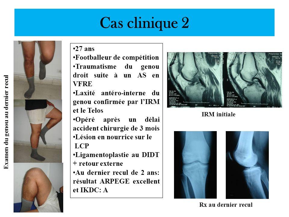 Cas clinique 2 27 ans Footballeur de compétition Traumatisme du genou droit suite à un AS en VFRE Laxité antéro-interne du genou confirmée par lIRM et