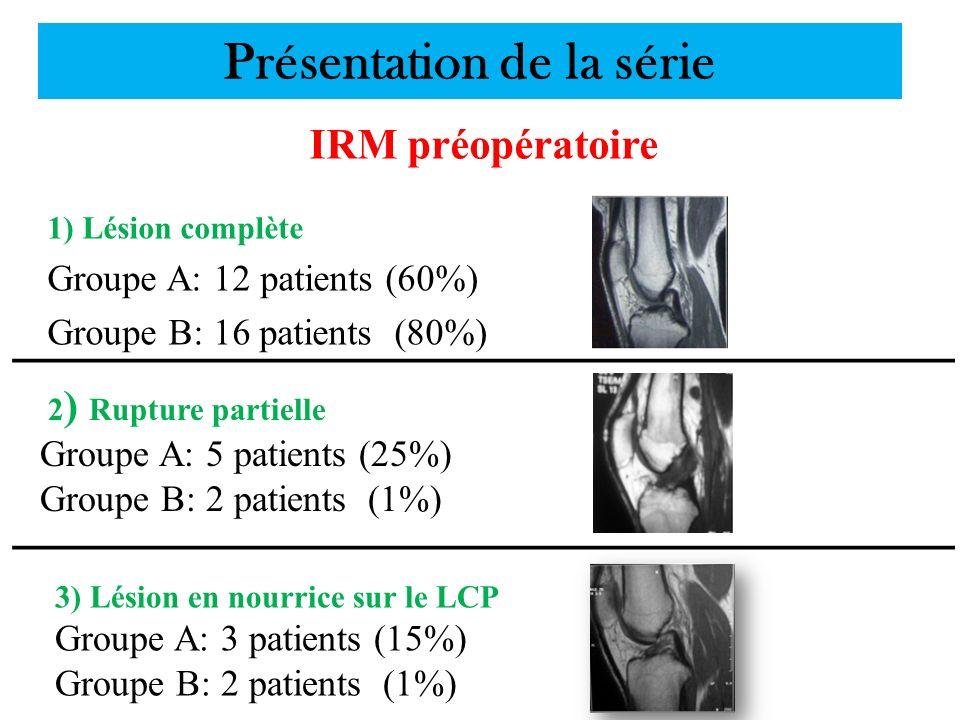 Présentation de la série IRM préopératoire 1) Lésion complète Groupe A: 12 patients (60%) Groupe B: 16 patients (80%) 2 ) Rupture partielle Groupe A: