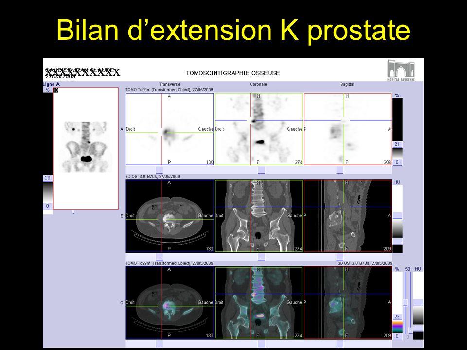Bilan dextension K prostate xxxxxxxxxx