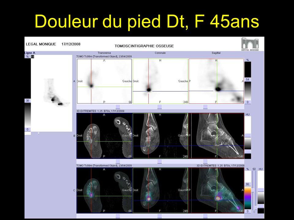 Douleur du pied Dt, F 45ans