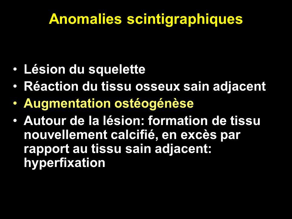Anomalies scintigraphiques Lésion du squelette Réaction du tissu osseux sain adjacent Augmentation ostéogénèse Autour de la lésion: formation de tissu