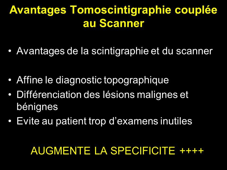 Avantages Tomoscintigraphie couplée au Scanner Avantages de la scintigraphie et du scanner Affine le diagnostic topographique Différenciation des lési