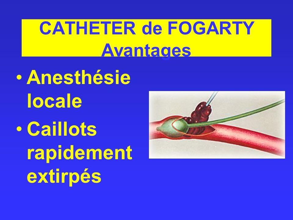 CATHETER de FOGARTY Avantages Anesthésie locale Caillots rapidement extirpés