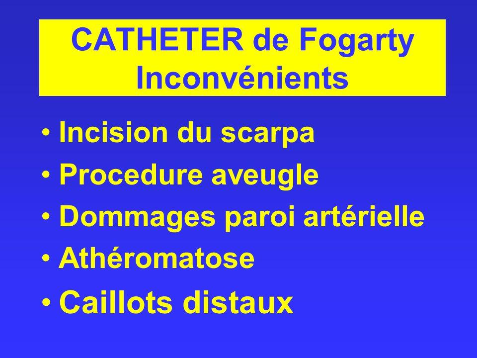 CATHETER de Fogarty Inconvénients Incision du scarpa Procedure aveugle Dommages paroi artérielle Athéromatose Caillots distaux