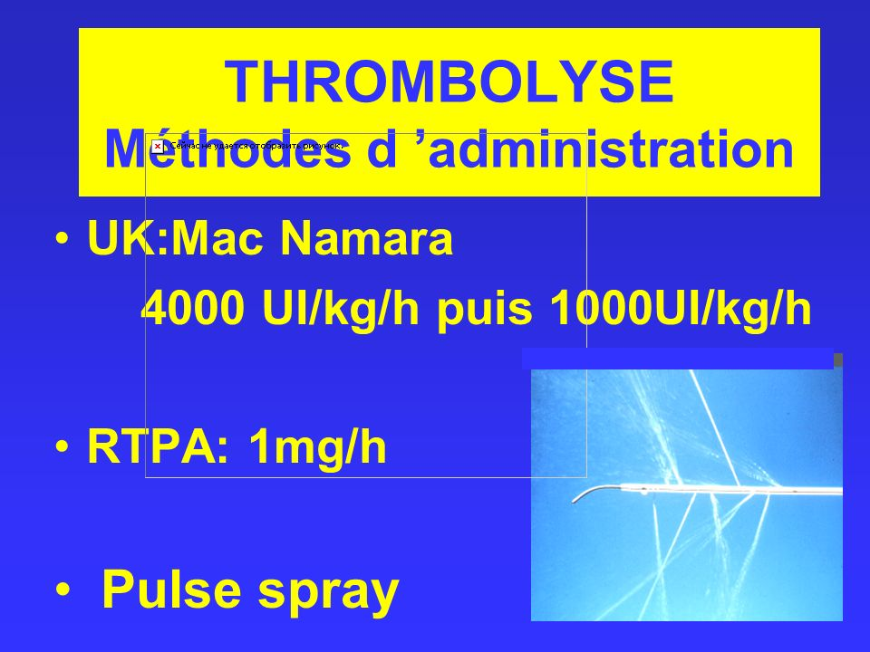 THROMBOLYSE Méthodes d administration UK:Mac Namara 4000 UI/kg/h puis 1000UI/kg/h RTPA: 1mg/h Pulse spray