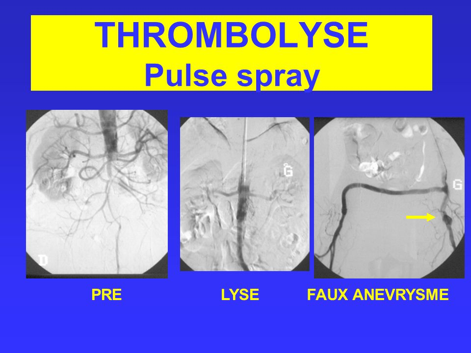 THROMBOLYSE Pulse spray PRELYSEFAUX ANEVRYSME