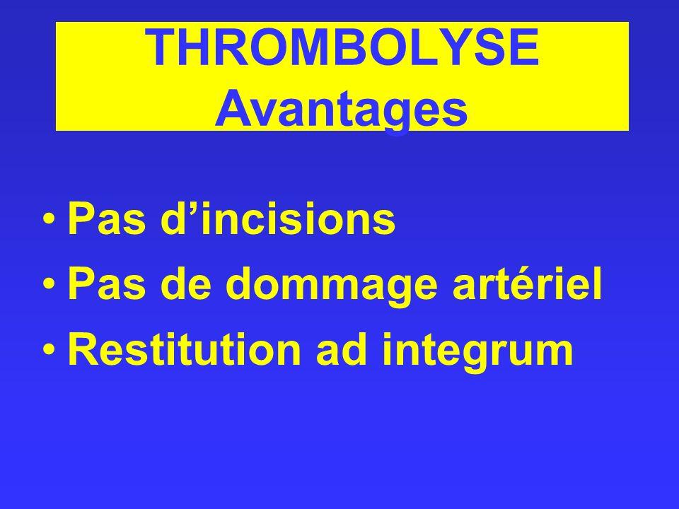 THROMBOLYSE Avantages Pas dincisions Pas de dommage artériel Restitution ad integrum
