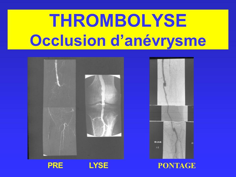 THROMBOLYSE Occlusion danévrysme PRELYSE PONTAGE