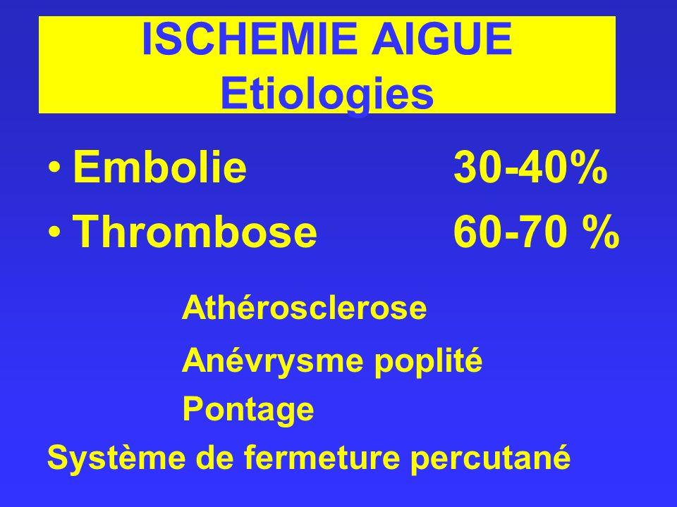 ISCHEMIE AIGUE Etiologies Embolie30-40% Thrombose60-70 % Athérosclerose Anévrysme poplité Pontage Système de fermeture percutané