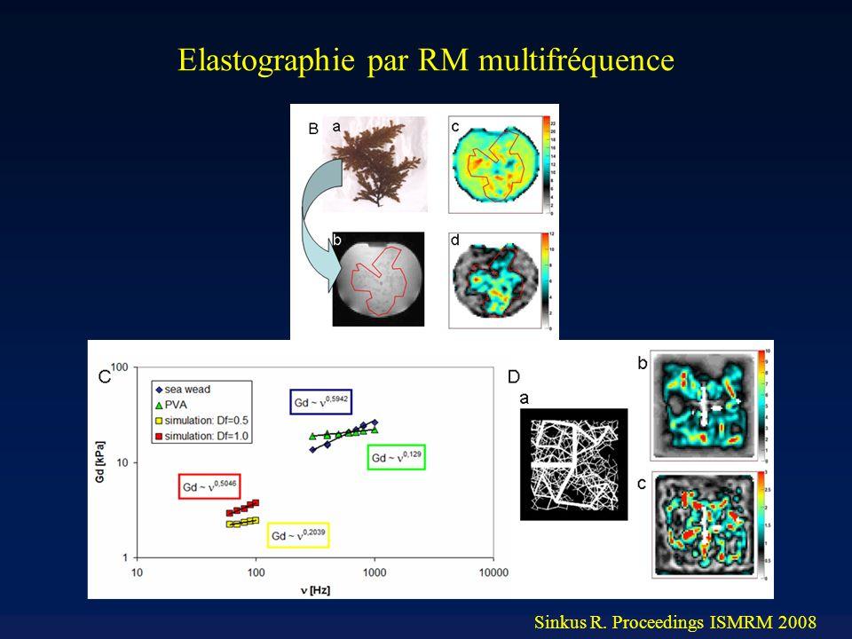 Sinkus R. Proceedings ISMRM 2008 Elastographie par RM multifréquence