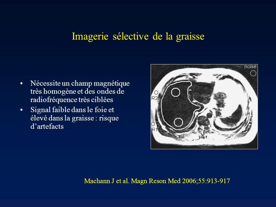 Imagerie sélective de la graisse Nécessite un champ magnétique très homogène et des ondes de radiofréquence très ciblées Signal faible dans le foie et