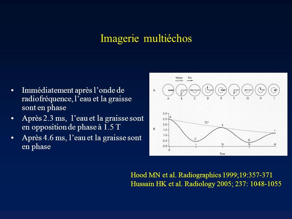 Imagerie multiéchos Immédiatement après londe de radiofréquence, leau et la graisse sont en phase Après 2.3 ms, leau et la graisse sont en opposition de phase à 1.5 T Après 4.6 ms, leau et la graisse sont en phase Hood MN et al.