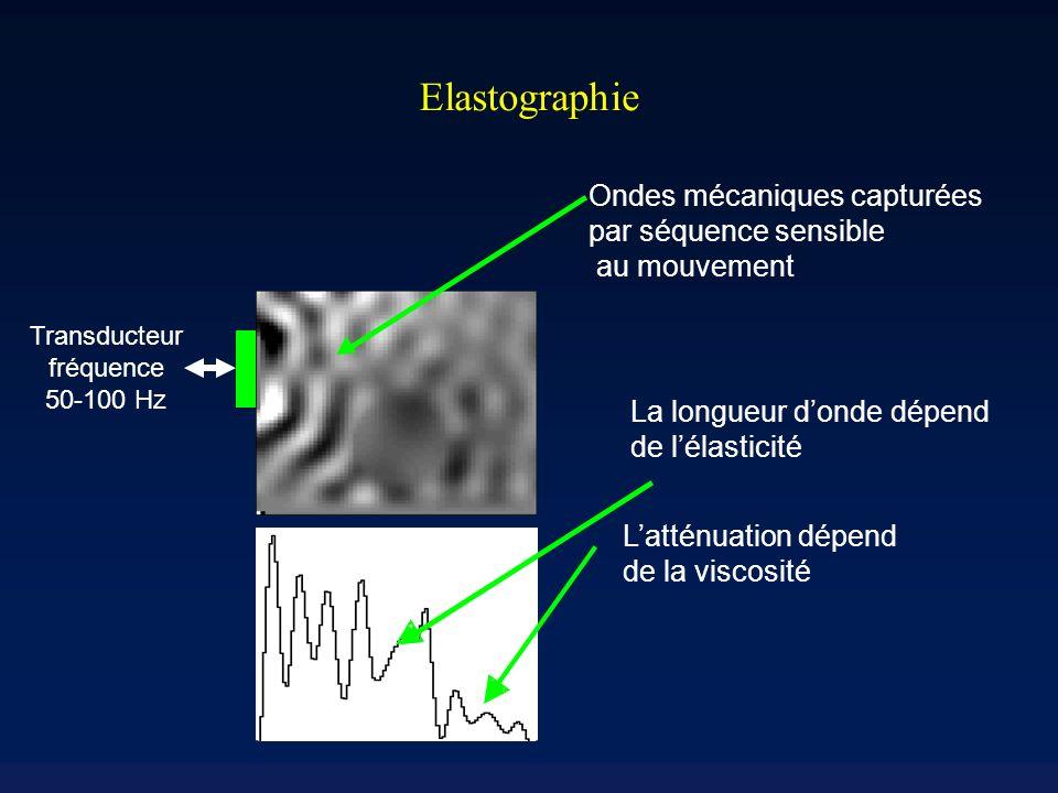 Elastographie La longueur donde dépend de lélasticité Latténuation dépend de la viscosité Ondes mécaniques capturées par séquence sensible au mouvement Transducteur fréquence 50-100 Hz