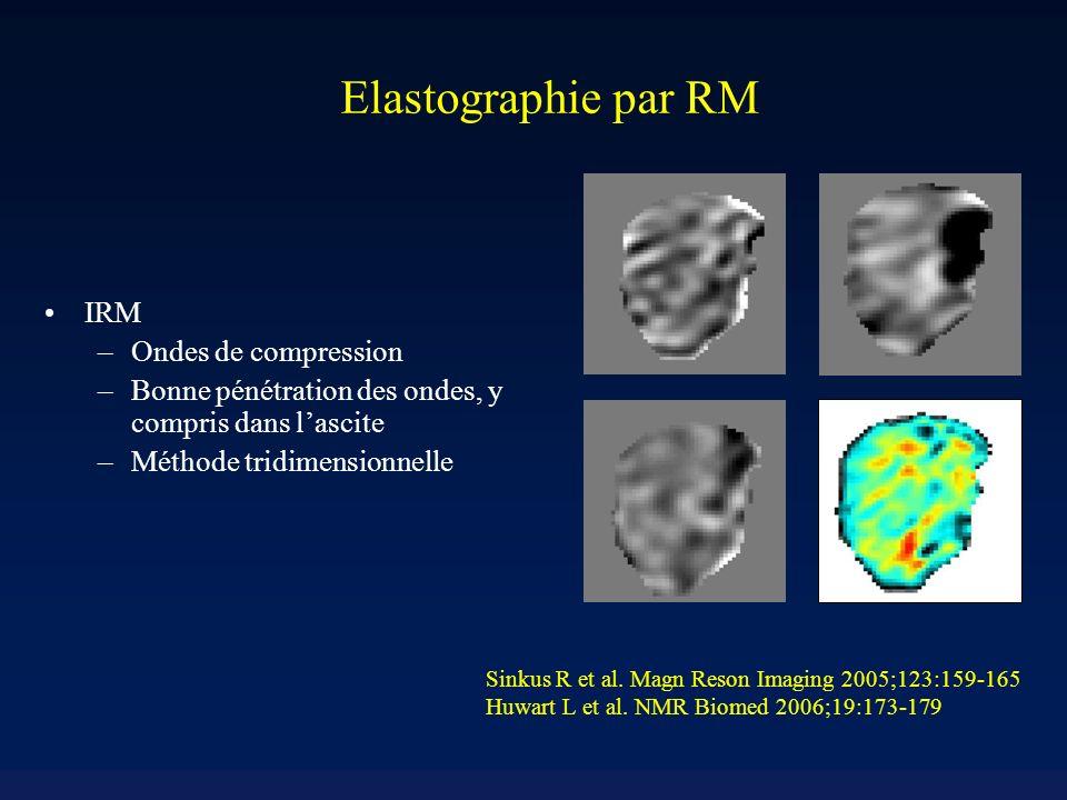 2 1.5 1.25 0.75 0.5 0.25 0 1 1.75 Elastographie par RM chez des rats ayant une fibrose induite par tétrachlorure de carbone [kPa] 2 1.5 1.25 0.75 0.5 0.25 0 1 1.75 [Pa·s] 2 1.5 1.25 0.75 0.5 0.25 0 1 1.75 [Pa·s] 12 10 8 6 4 2 0 [kPa] 12 10 8 6 4 2 0 [kPa] = 1.59 ± 0.45 [kPa] = 0.51 ± 0.22 [Pas] Fibrose : 0.62% Hydroxyproline = 268 g/g = 2.32 ± 0.68 [kPa] = 0.84 ± 0.33 [Pas] Fibrose : 4.28% Hydroxyproline = 755 g/g = 2.70 ± 1.00 [kPa] = 0.78 ± 0.51[Pas] Fibrose : 8.33% Hydroxyproline = 1520 g/g Contrôle 6 sem - 9 sem [Pa·s]