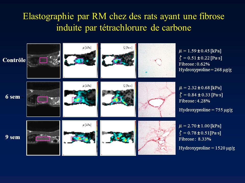 2 1.5 1.25 0.75 0.5 0.25 0 1 1.75 Elastographie par RM chez des rats ayant une fibrose induite par tétrachlorure de carbone [kPa] 2 1.5 1.25 0.75 0.5