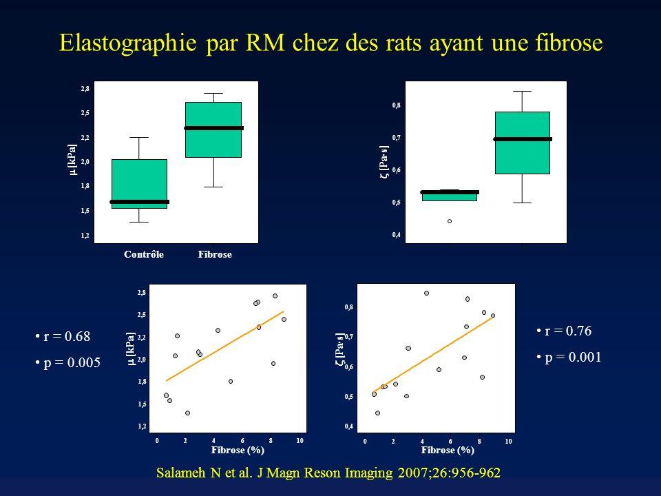Elastographie par RM chez des rats ayant une fibrose ContrôleFibrose 1,2 1,5 1,8 2,0 2,2 2,5 2,8 [kPa] ControlFibrosis 0,4 0,5 0,6 0,7 0,8 [Pa·s] 0246810 Fibrose (%) 1,2 1,5 1,8 2,0 2,2 2,5 2,8 [kPa] 0246810 Fibrose (%) 0,4 0,5 0,6 0,7 0,8 [Pa·s] r = 0.68 p = 0.005 r = 0.76 p = 0.001 Salameh N et al.