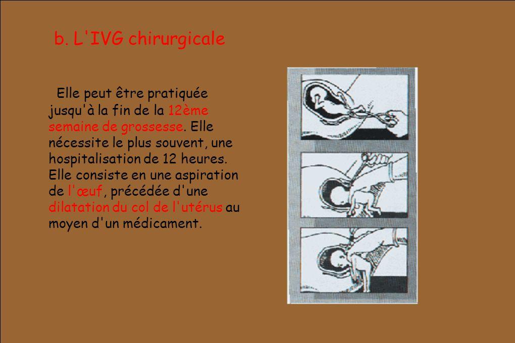 b. L'IVG chirurgicale Elle peut être pratiquée jusqu'à la fin de la 12ème semaine de grossesse. Elle nécessite le plus souvent, une hospitalisation de