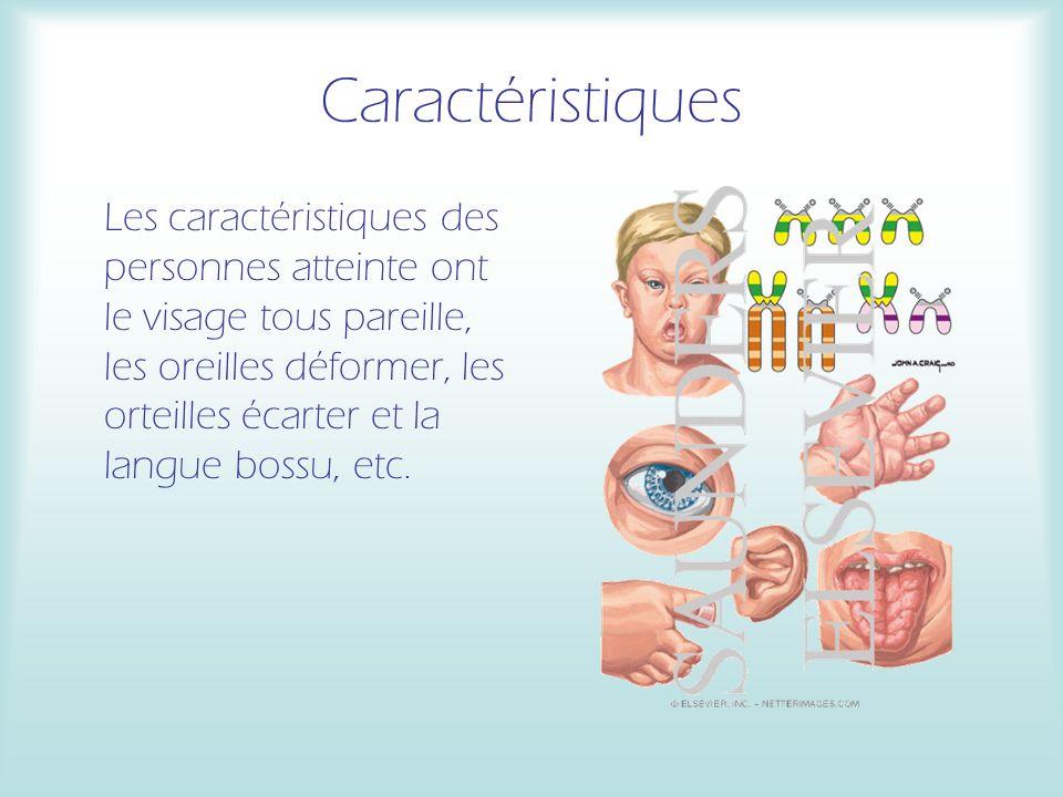 Caractéristiques Les caractéristiques des personnes atteinte ont le visage tous pareille, les oreilles déformer, les orteilles écarter et la langue bossu, etc.