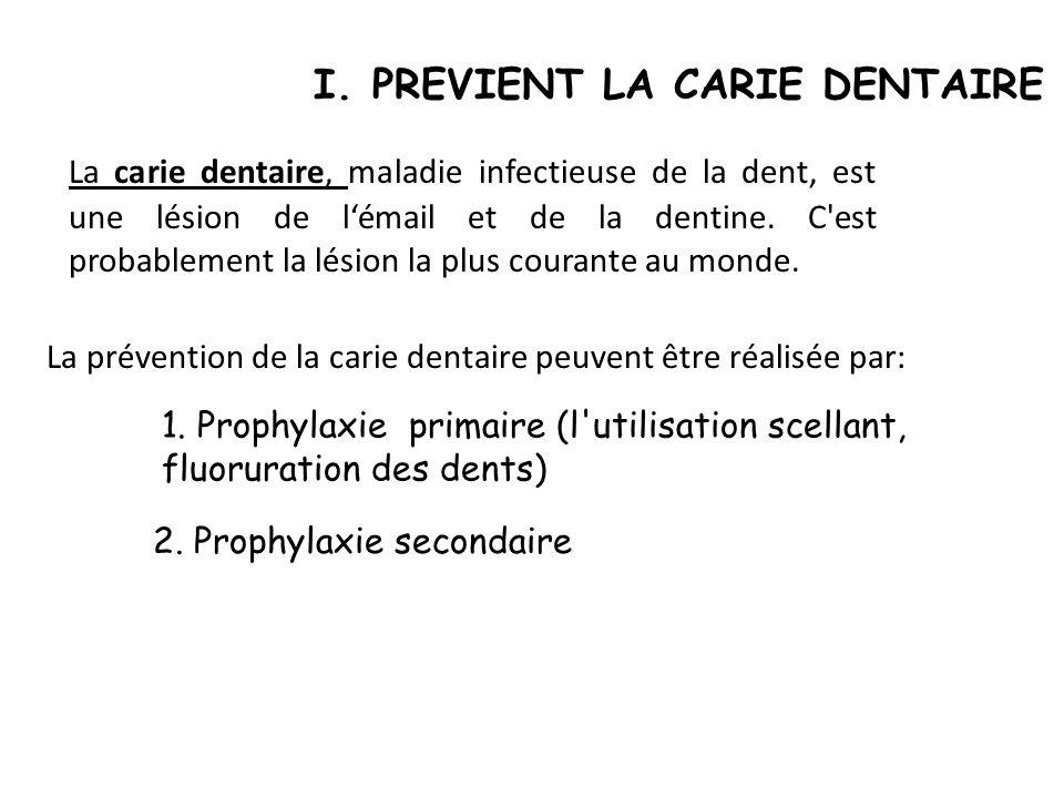 I. PREVIENT LA CARIE DENTAIRE La carie dentaire, maladie infectieuse de la dent, est une lésion de lémail et de la dentine. C'est probablement la lési