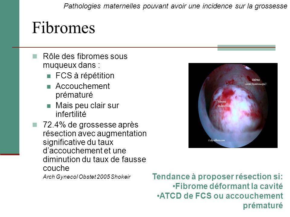 Fibromes Rôle des fibromes sous muqueux dans : FCS à répétition Accouchement prématuré Mais peu clair sur infertilité 72.4% de grossesse après résecti