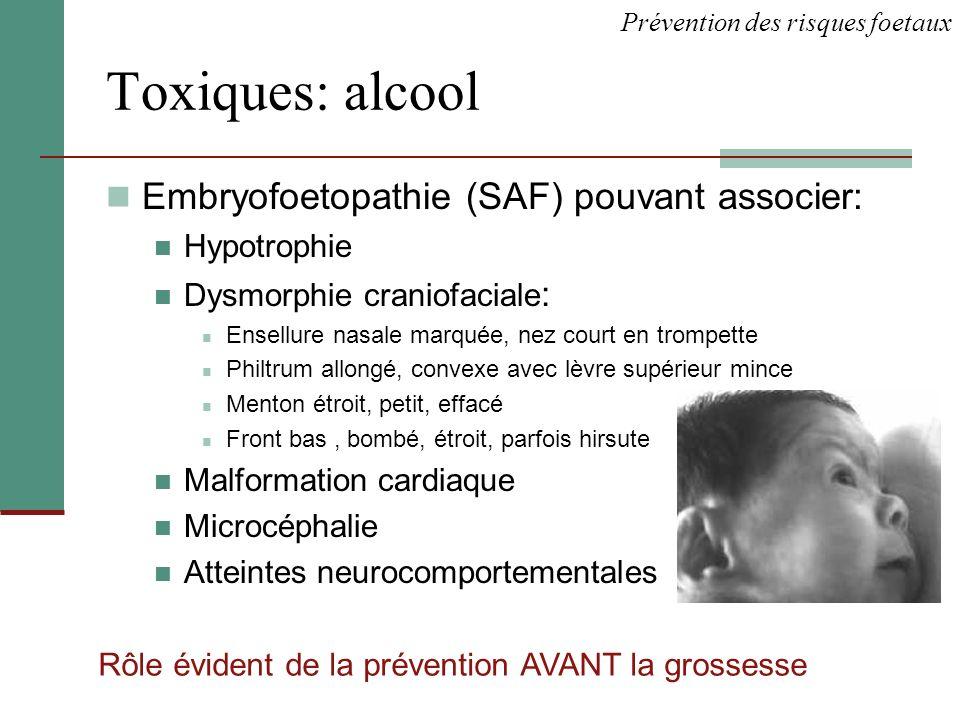 Toxiques: alcool Embryofoetopathie (SAF) pouvant associer: Hypotrophie Dysmorphie craniofaciale : Ensellure nasale marquée, nez court en trompette Phi
