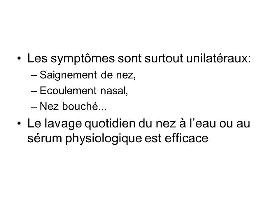 Les symptômes sont surtout unilatéraux: –Saignement de nez, –Ecoulement nasal, –Nez bouché...