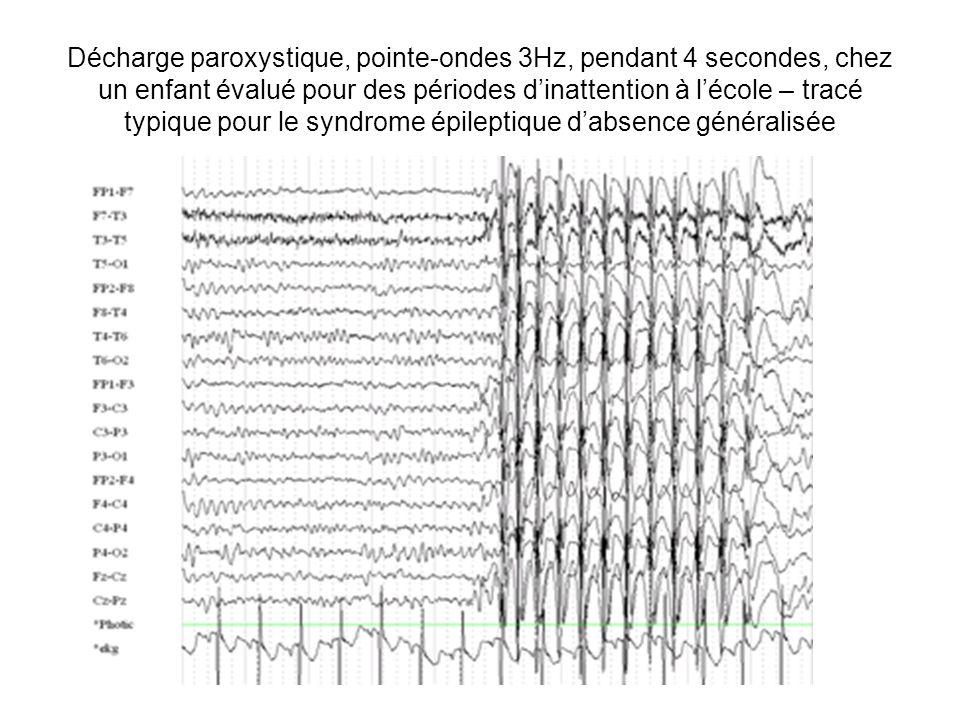 Décharge paroxystique, pointe-ondes 3Hz, pendant 4 secondes, chez un enfant évalué pour des périodes dinattention à lécole – tracé typique pour le syn
