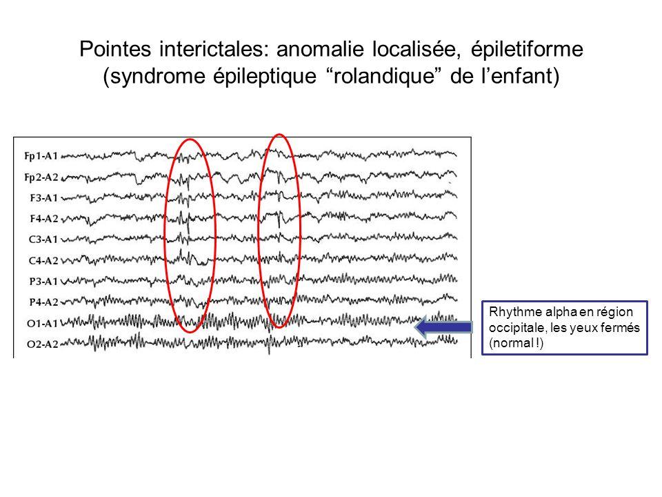 Pointes interictales: anomalie localisée, épiletiforme (syndrome épileptique rolandique de lenfant) Rhythme alpha en région occipitale, les yeux fermé