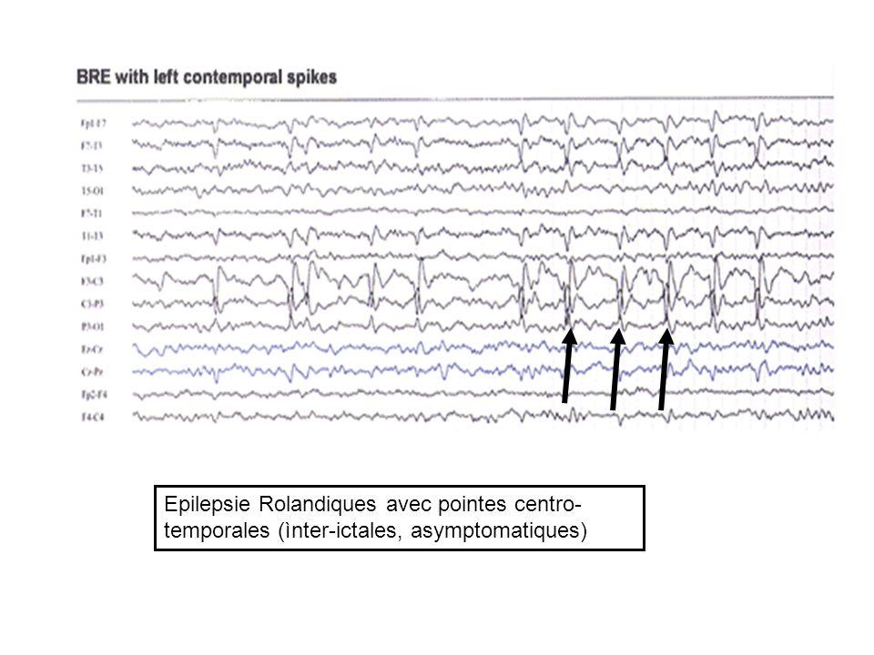 Epilepsie Rolandiques avec pointes centro- temporales (ìnter-ictales, asymptomatiques)