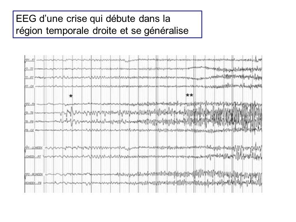 EEG dune crise qui débute dans la région temporale droite et se généralise