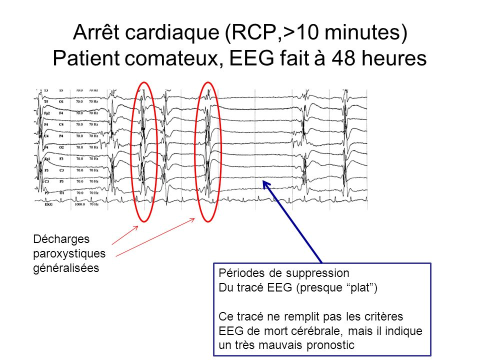 Arrêt cardiaque (RCP,>10 minutes) Patient comateux, EEG fait à 48 heures Décharges paroxystiques généralisées Périodes de suppression Du tracé EEG (pr
