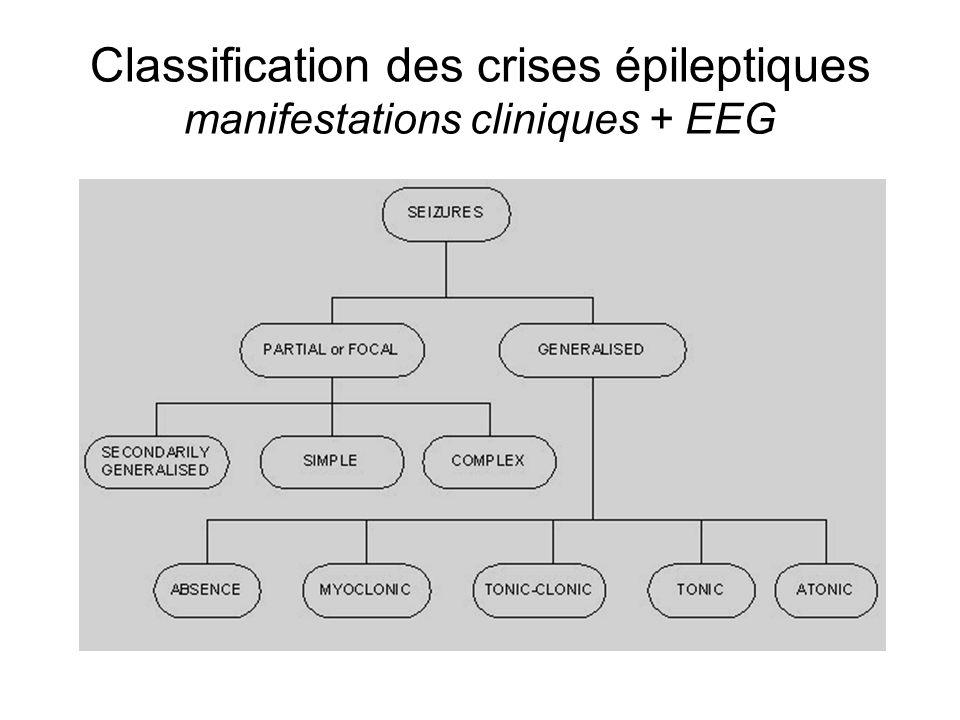Classification des crises épileptiques manifestations cliniques + EEG