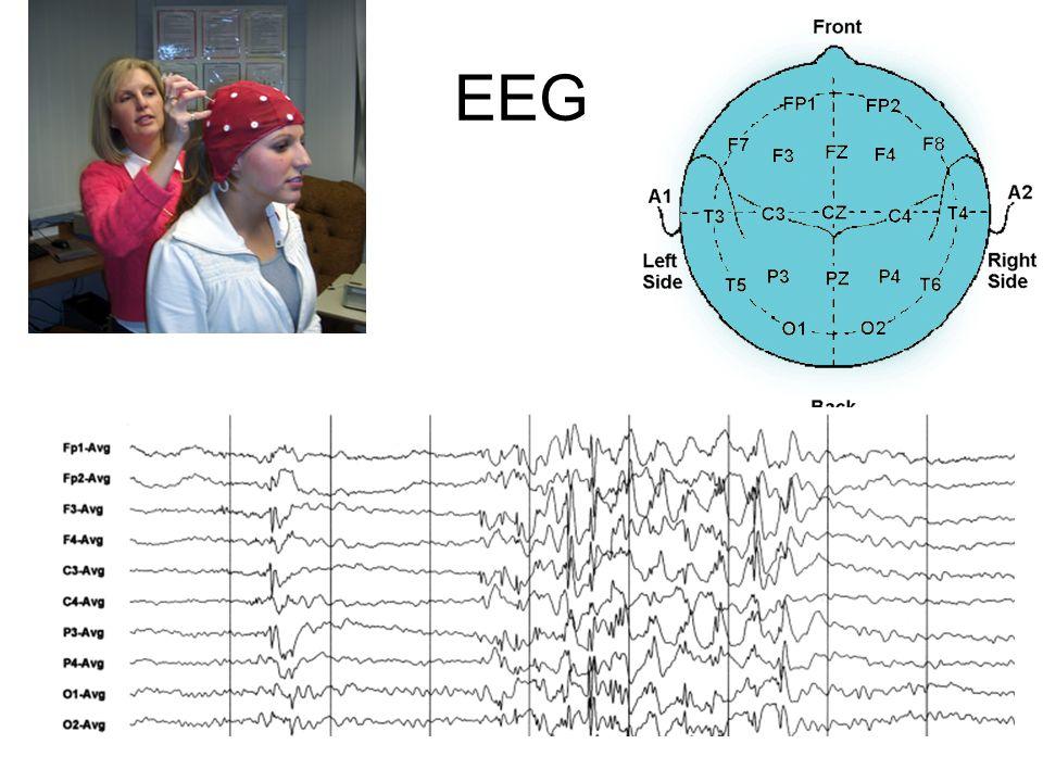 EEG – considérations pratiques Enregistrement au niveau du cuir chevelu de potentiels électriques représentant une somme des activités synaptiques du cortex (pas des potentiels daction) Méthodes dactivation –Ouverture / fermeture des yeux –Hyperventilation &Stimulation lumineuse(stroboscope) –Sommeil, privation de sommeil Interférences nombreuses: contractions musculaires, mouvement des yeux, mouvement de la tête, cardiaque, etc