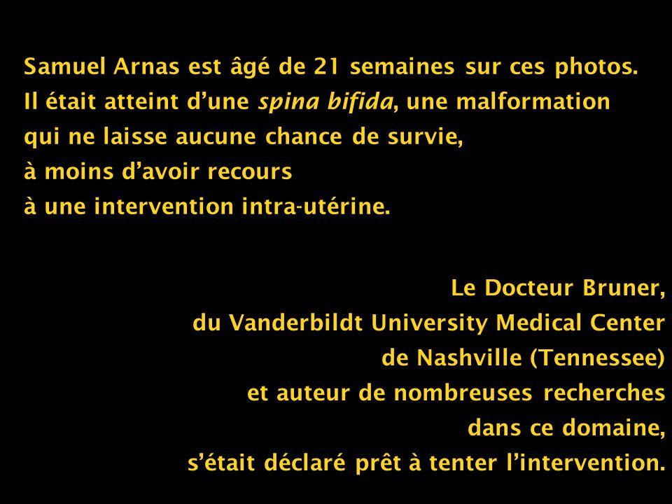 Samuel Arnas est âgé de 21 semaines sur ces photos. Il était atteint dune spina bifida, une malformation qui ne laisse aucune chance de survie, à moin