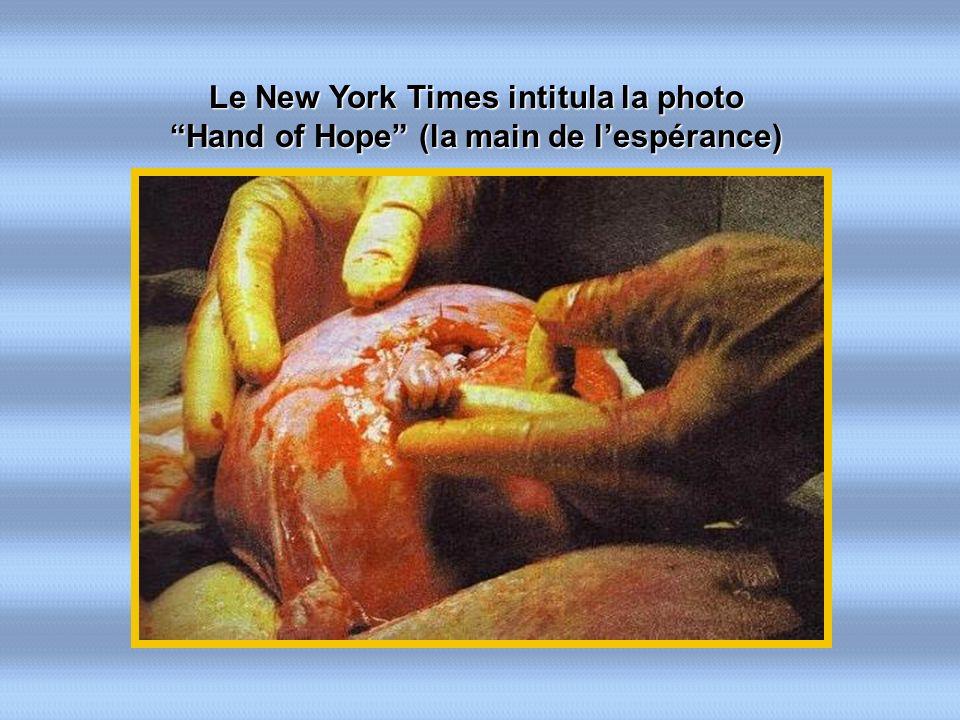 Le New York Times intitula la photo Hand of Hope (la main de lespérance)