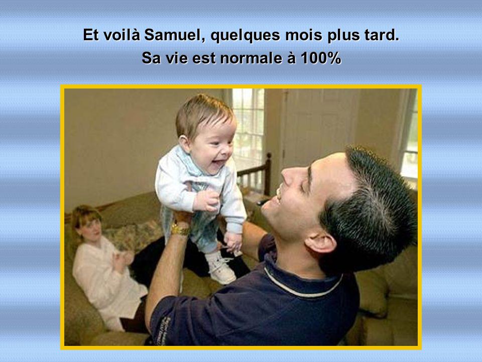Et voilà Samuel, quelques mois plus tard. Sa vie est normale à 100%