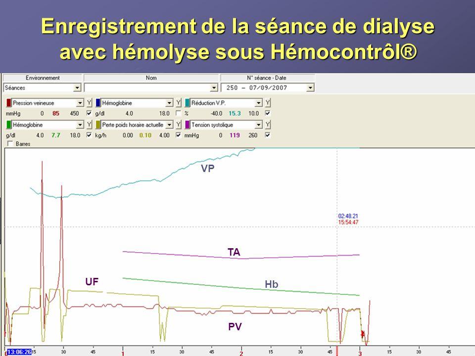 Enregistrement de la séance de dialyse avec hémolyse sous Hémocontrôl® VP TA Hb PV UF