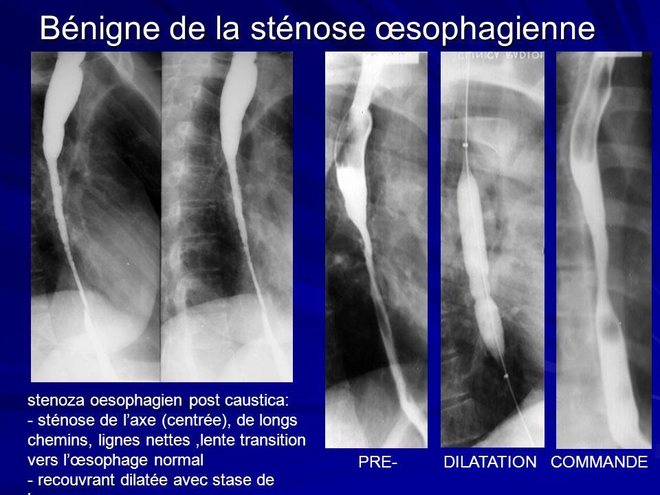 stenoza oesophagien post caustica: - sténose de laxe (centrée), de longs chemins, lignes nettes,lente transition vers lœsophage normal - recouvrant dilatée avec stase de baryum; Bénigne de la sténose œsophagienne PRE- DILATATION COMMANDE