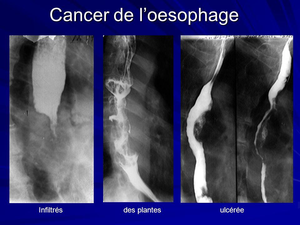 Cancer de loesophage Infiltrés des plantes ulcérée