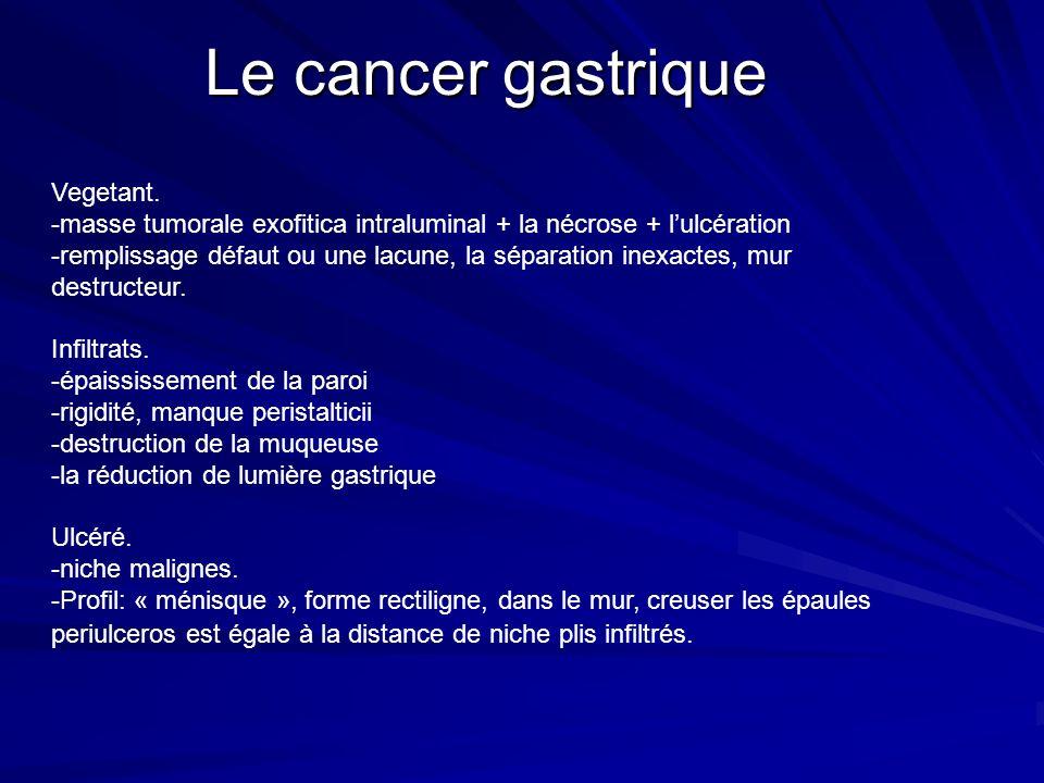 Le cancer gastrique Vegetant.