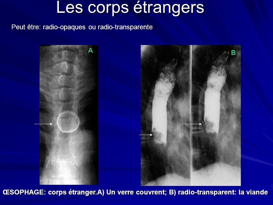 ŒSOPHAGE: corps étranger.A) Un verre couvrent; B) radio-transparent: la viande A B Les corps étrangers Peut être: radio-opaques ou radio-transparente
